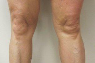 Manhattan liposuction after 3
